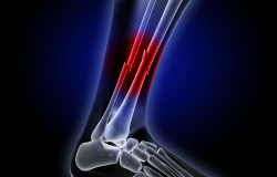 x-ray image of ankle showing broken bone
